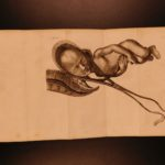 1796 Baudelocque Art of Obstetrics Midwifery Childbirth Illustrated Medicine