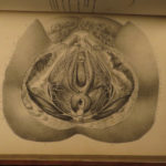 1844 1ed Obstetrics & Midwifery Moreau Gynecology OBGYN Medicine Illustrated